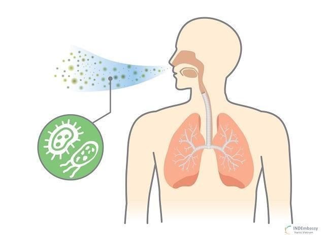 Viêm phổi là gì, chữa được không? Triệu chứng, nguyên nhân và điều trị - Chi tiết tin tức